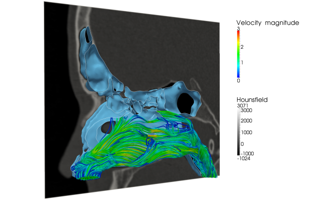Figure 2: ZFS has been used to to better understand airflow within the human nasal cavity.