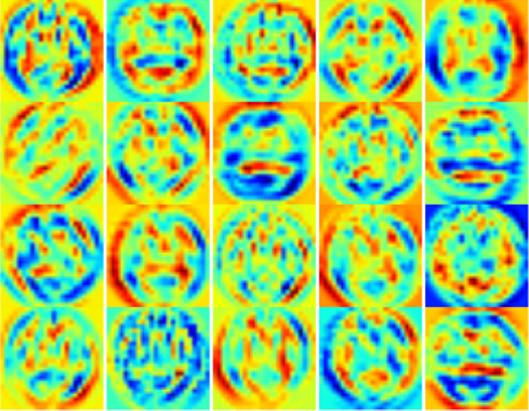 NVIDIA DIGITS Assists Alzheimer's Disease Prediction